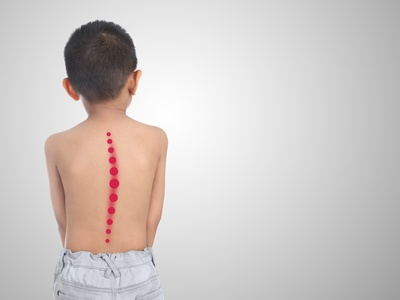 Kinderorthopädie Berlin Skoliose Rücken